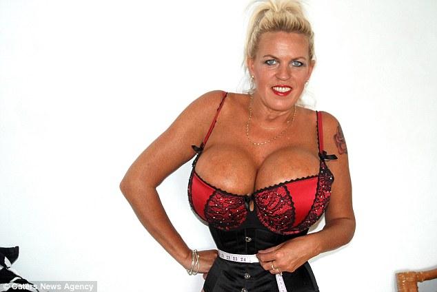 500cc Breast Implants Photos