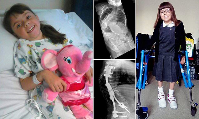 Girl who was being crushed to death by curve in her back saved by TITANIUM spine