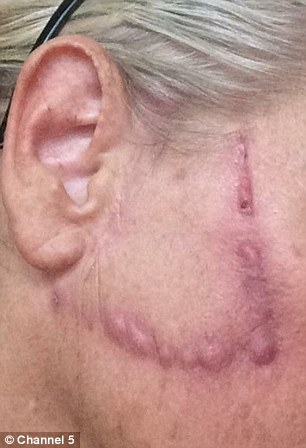 After six months having pus drained, she was left with unsightly scars on each cheek