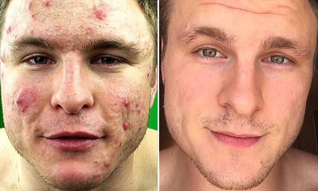 Vegan acne cure shared by bodybuilder