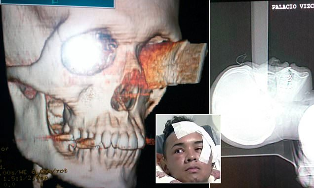X-ray shows man stabbed in his eye piercing his BRAIN miraculously survives