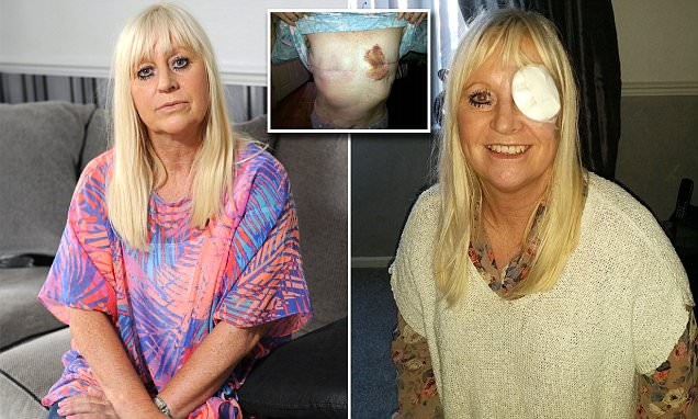Cancer sufferer unable to have sex after failed breast implants left her disabled
