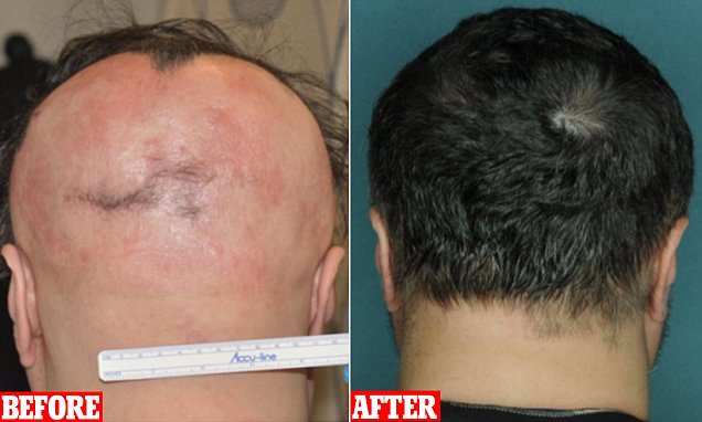 Four-month baldness treatment ruxolitinib helps patients regrow a full head of hair